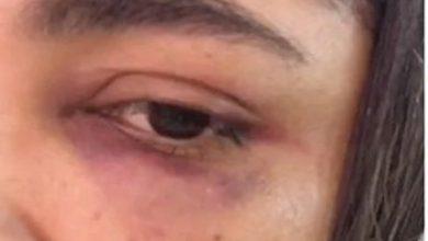 Photo of AME repudia declarações de vereador acusado de agredir ex-namorada